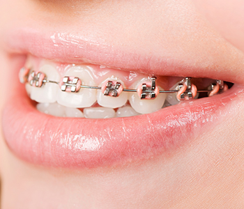 Orthodontic braces in Vernon BC