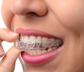 Cost-effective Alternative to Braces from Dr. Dhaliwal, Aberdeen Dental Centre