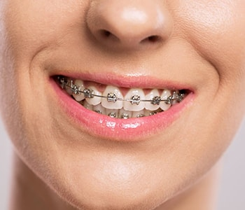 Orthodontic Treatment in BC