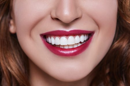 Porcelain Veneers at Aberdeen Dental Centre